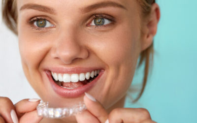 Clear Aligners Vs Braces – How Do They Compare?